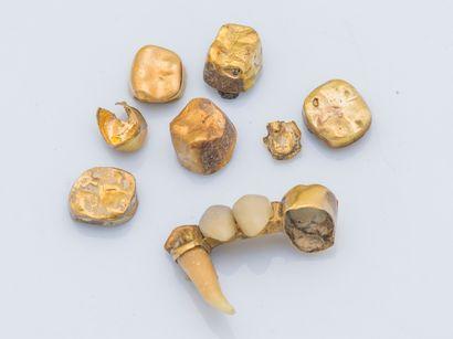 Lot de débris d'or dentaire 18 carats (750...