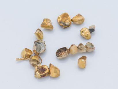 Lot de dents en or jaune 18 carats (750 millièmes)....