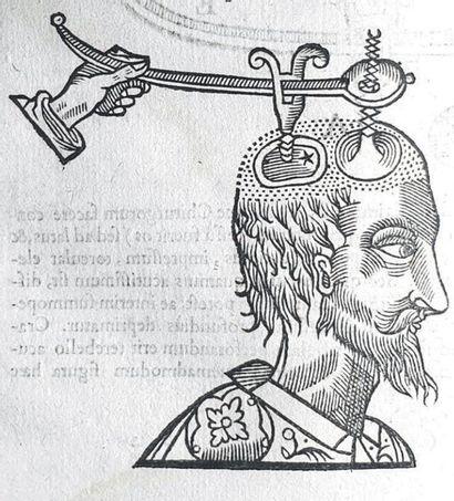 FABRICIUS VON HILDEN (Wilhelm).