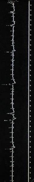 ELECTROCARDIOGRAMME (sur le thème de). Ensemble de dix tirages argentiques en noir...