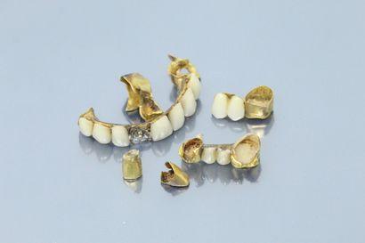 Lot d'or dentaire.  Poids brut : 39.85 g...