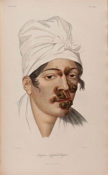 CAZENAVE (Pierre Louis Alphée)