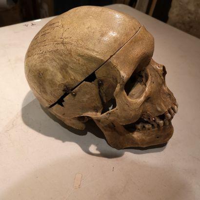 Crâne d'étude.