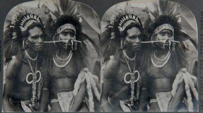 KEYSTONE VIEW COMPANY et divers
