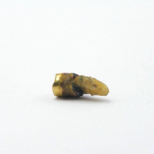 OR DÉBRIS  Débris de dent en or, chaînette de sécurité, deux épingles avec trace…