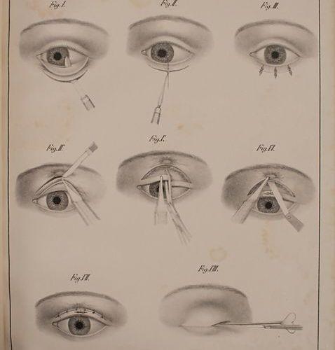 Ritterich, Fachbuch Erstausgabe 'Lehre von den blutigen Augenoperationen am mens…