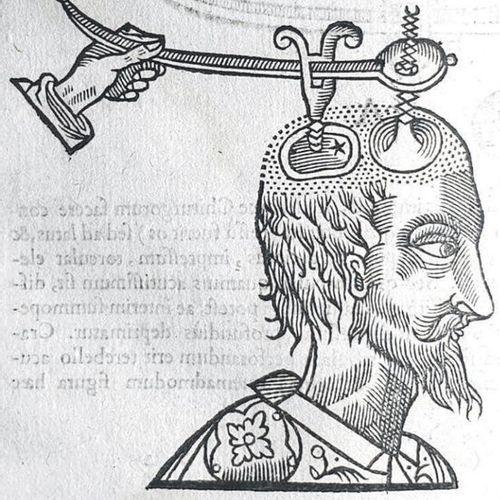 FABRICIUS VON HILDEN (Wilhelm). Observationum & Curationum Chirurgicarum centuri…